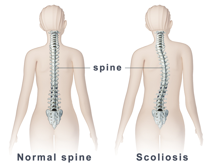 Scoliosis: The Importance of Early Detection- Tips for  Parents